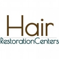 Affordable Hair Transplants Los Angeles