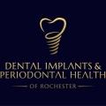 Dental Implants & Periodontal Health